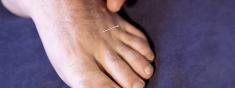 services-dry-needling